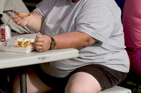 Persoana obeza