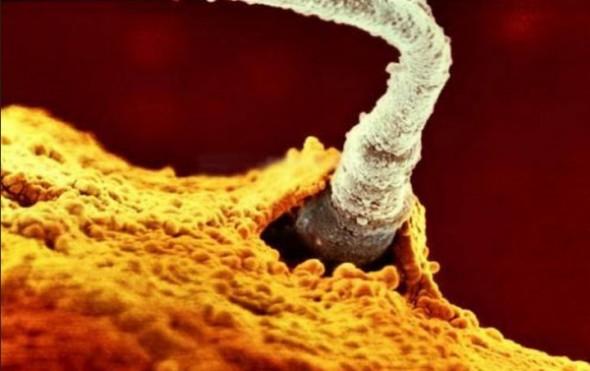 4. Unul dintre 200 de milioane de spermatozoizi sparge membrana ovulului