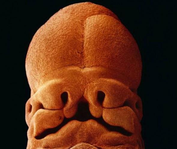 11. 5 săptămîni, mărimea 9 mm. Se prevede deja forma feței
